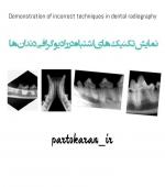 نمایش تکنیک های اشتباه  در رادیوگرافی دندان ها