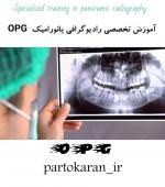 آموزش تخصصی رادیوگرافی پانورامیک (  OPG )