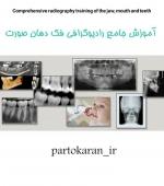 آموزش جامع انواع رادیوگرافی در فک دهان صورت